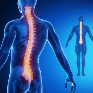 Spinal can be treated by a chiropractor in Massapequa.
