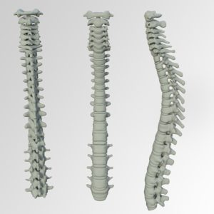 spine specialist in Massapequa